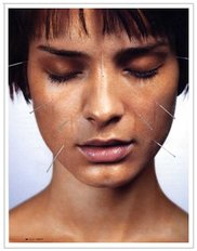 NYC Bell's Palsy Acupuncture